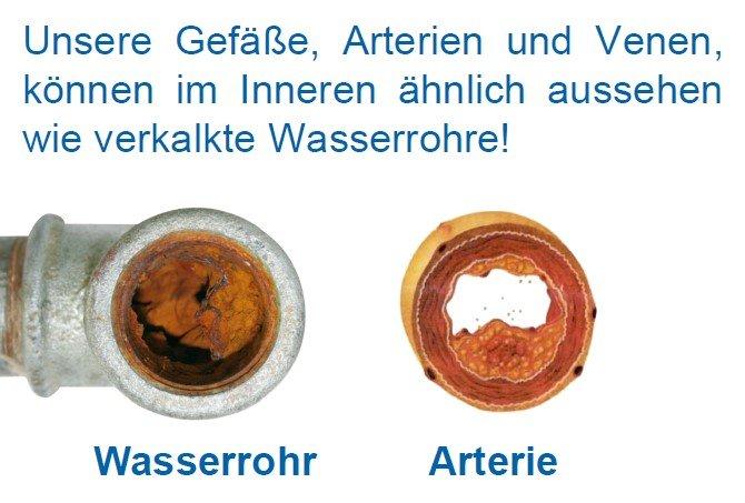 Bild Wasserrohr + Arterie