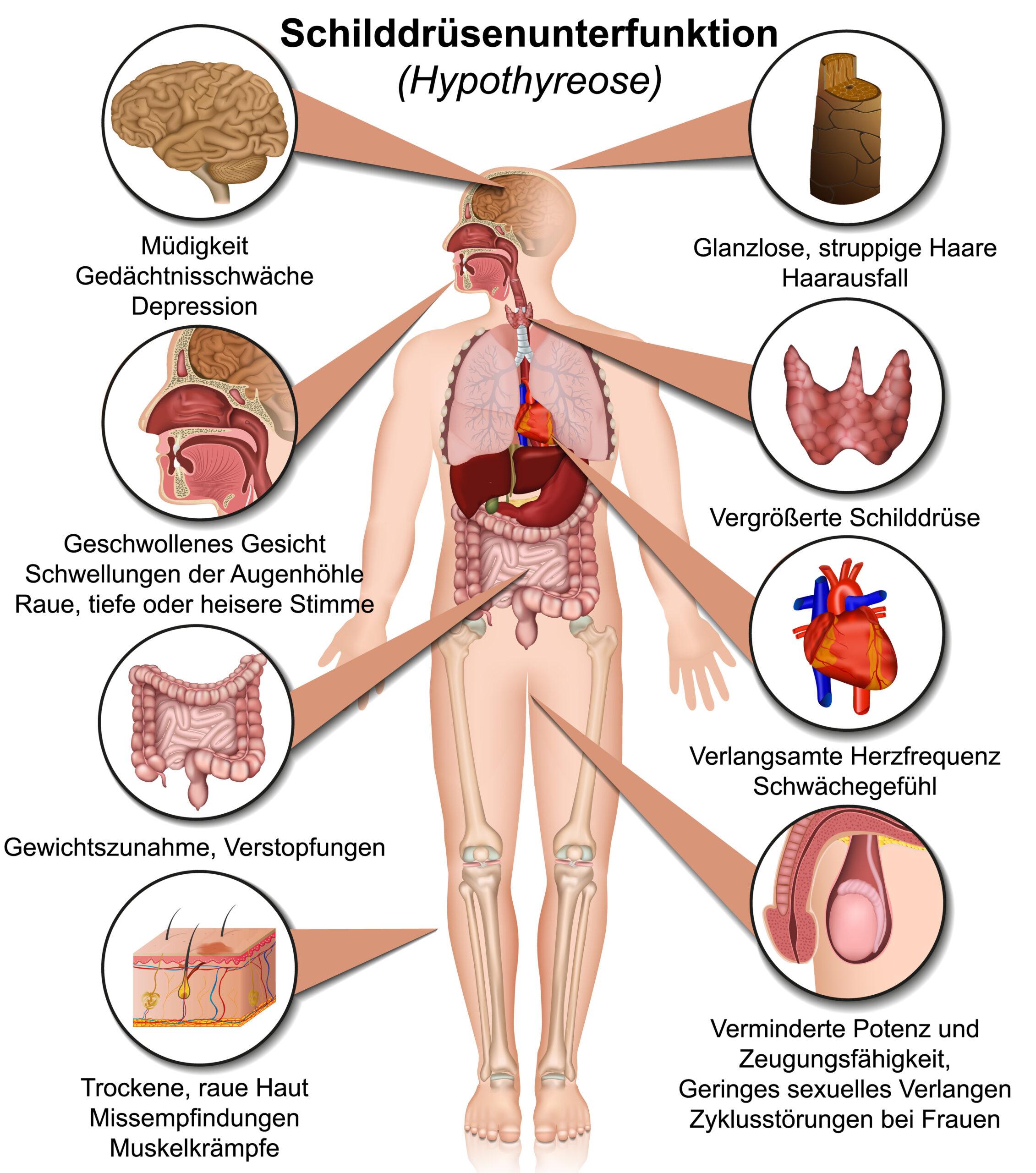 Schilddrüsenunterfunktion